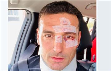 Lionel Scaloni fue dado de alta tras sufrir un accidente en España