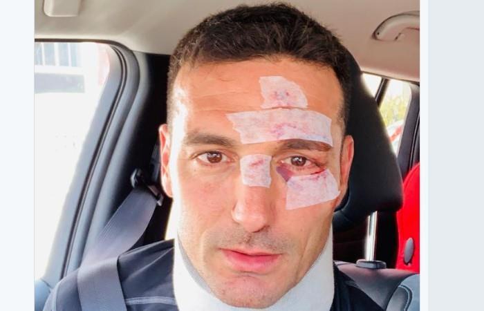 Scaloni fue hospitalizado en Mallorca tras un accidente